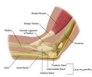 شکستگی آرنج و درمان آن