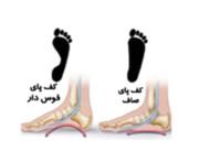 ناهنجاری کف پای صاف:flat foot