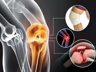 توصیه هایی برای بیماران آرتروز و التهاب مفصل