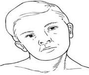 کج گردنیWryneck یاTorticollis