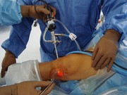 تمریناتی برای بعد از عمل جراحی زانو