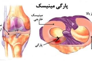درمان پارگی منیسک زانو