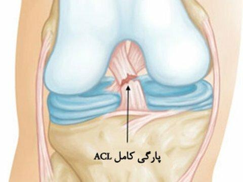 تمرینات توانبخشی پس از جراحی