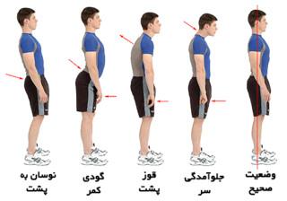 ناهنجاری های حرکتی و استخوانی