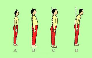 کارگاه آموزشی ارزیابی و شناسایی ناهنجاریهای اسکلتی - چهار محال وبختیاری