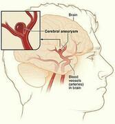آنوریسم عروق مغزی ناشی از یک ضعف در جدار شریانهای مغزی است